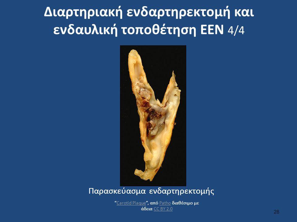 Διαρτηριακή ενδαρτηρεκτομή και ενδαυλική τοποθέτηση ΕΕΝ 4/4 28 Παρασκεύασμα ενδαρτηρεκτομής Carotid Plaque , από Patho διαθέσιμο με άδεια CC BY 2.0Carotid PlaquePathoCC BY 2.0