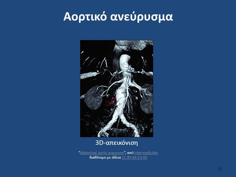 Αορτικό ανεύρυσμα 3D-απεικόνιση 31 Abdominal aortic aneurysm , από Intermedichbo διαθέσιμο με άδεια CC BY-SA 3.0 RSAbdominal aortic aneurysmIntermedichboCC BY-SA 3.0 RS