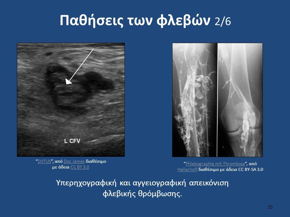 Παθήσεις των φλεβών 2/6 Υπερηχογραφική και αγγειογραφική απεικόνιση φλεβικής θρόμβωσης.