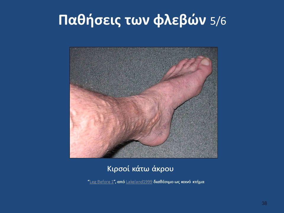 Παθήσεις των φλεβών 5/6 Κιρσοί κάτω άκρου 38 Leg Before 1 , από Lakeland1999 διαθέσιμο ως κοινό κτήμαLeg Before 1Lakeland1999