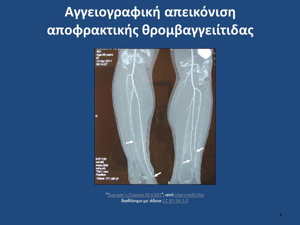 Αγγειογραφική απεικόνιση αποφρακτικής θρομβαγγειίτιδας 4 Buerger s Disease.M.V.561 , από Intermedichbo διαθέσιμο με άδεια CC BY-SA 3.0Buerger s Disease.M.V.561IntermedichboCC BY-SA 3.0
