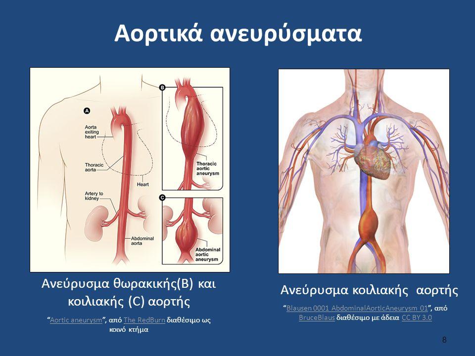 Αορτικά ανευρύσματα 8 Ανεύρυσμα θωρακικής(B) και κοιλιακής (C) αορτής Ανεύρυσμα κοιλιακής αορτής Aortic aneurysm , από The RedBurn διαθέσιμο ως κοινό κτήμαAortic aneurysmThe RedBurn Blausen 0001 AbdominalAorticAneurysm 01 , από BruceBlaus διαθέσιμο με άδεια CC BY 3.0Blausen 0001 AbdominalAorticAneurysm 01 BruceBlausCC BY 3.0