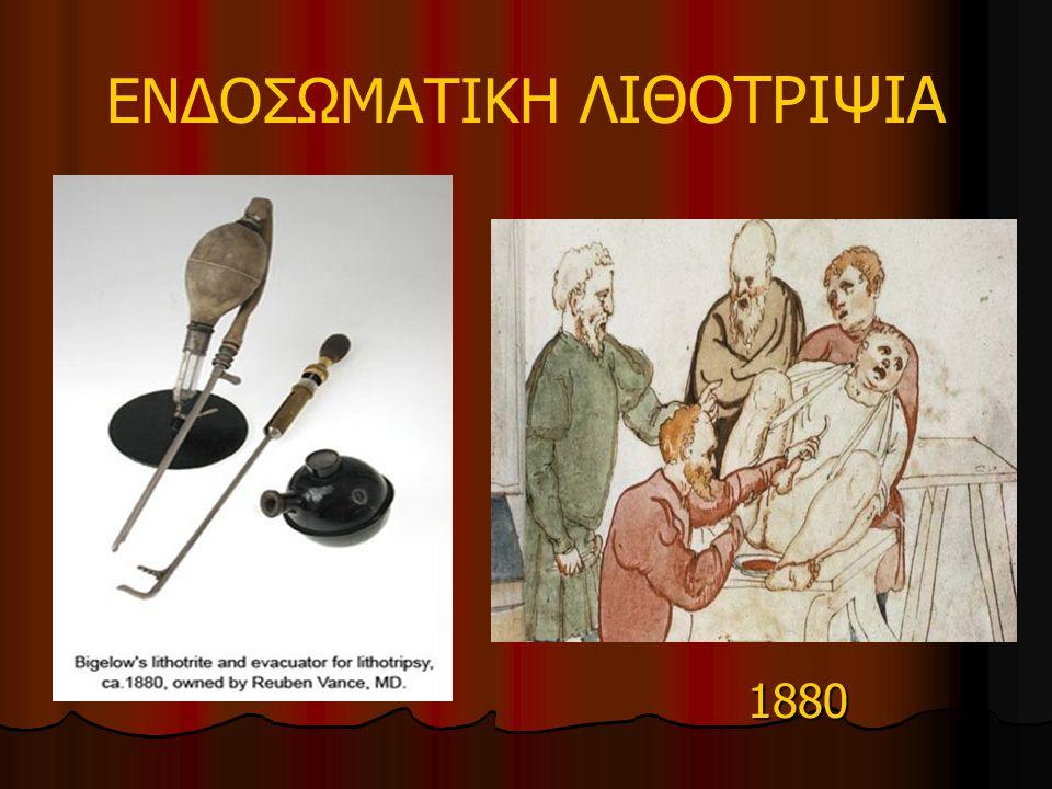 ΕΝΔΟΣΩΜΑΤΙΚΗ ΛΙΘΟΤΡΙΨΙΑ 1880