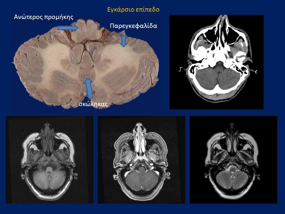 Εγκάρσιο επίπεδο Παρεγκεφαλίδα σκώληκας Ανώτερος προμήκης