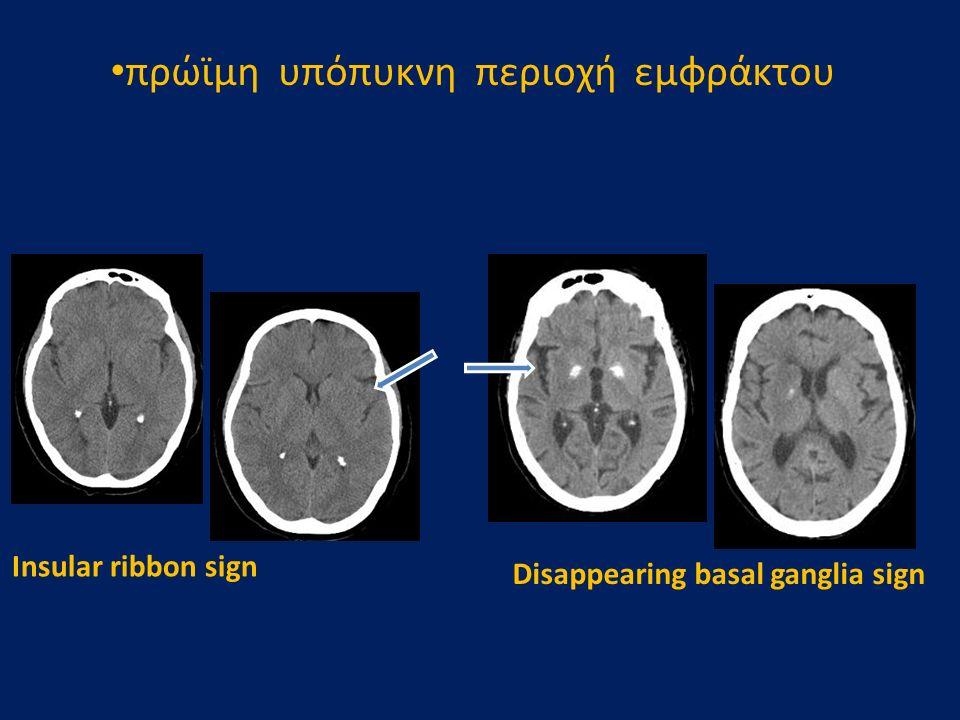 πρώϊμη υπόπυκνη περιοχή εμφράκτου Insular ribbon sign Disappearing basal ganglia sign