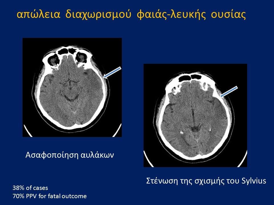 Στένωση της σχισμής του Sylvius Ασαφοποίηση αυλάκων 38% of cases 70% PPV for fatal outcome απώλεια διαχωρισμού φαιάς-λευκής ουσίας