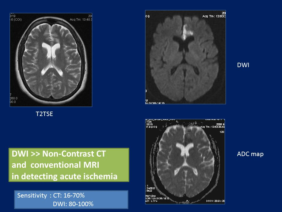 T2TSE DWI ADC map DWI >> Non-Contrast CT and conventional MRI in detecting acute ischemia Sensitivity : CT: 16-70% DWI: 80-100%