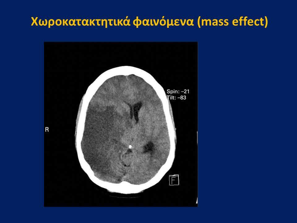 Xωροκατακτητικά φαινόμενα (mass effect)