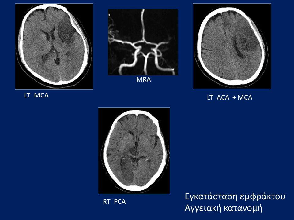 Εγκατάσταση εμφράκτου Αγγειακή κατανομή LT ACA + MCA LT MCA RT PCA MRA