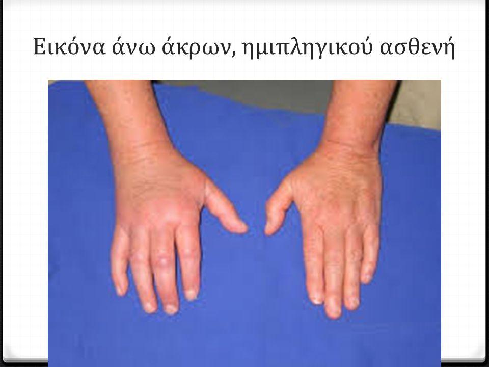 Εικόνα άνω άκρων, ημιπληγικού ασθενή