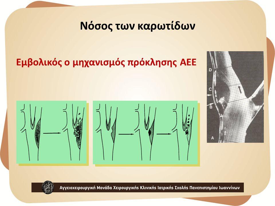 Νόσος των καρωτίδων Εμβολικός ο μηχανισμός πρόκλησης ΑΕΕ