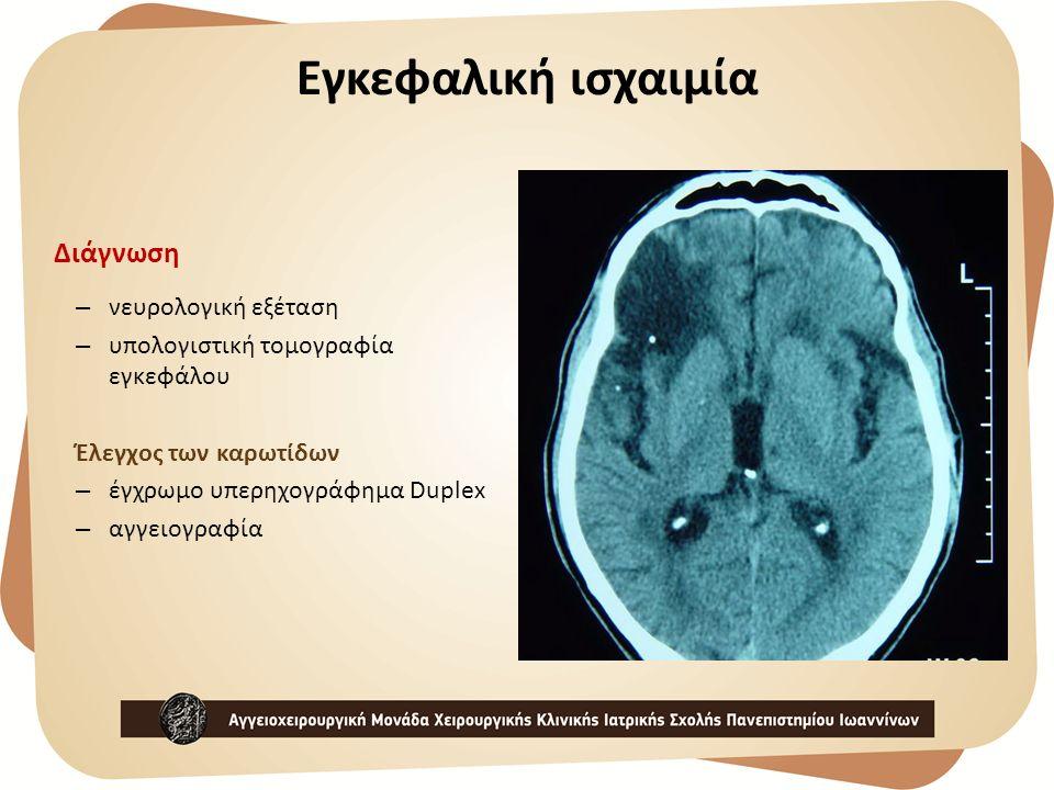 Διάγνωση – νευρολογική εξέταση – υπολογιστική τομογραφία εγκεφάλου Έλεγχος των καρωτίδων – έγχρωμο υπερηχογράφημα Duplex – αγγειογραφία Εγκεφαλική ισχ