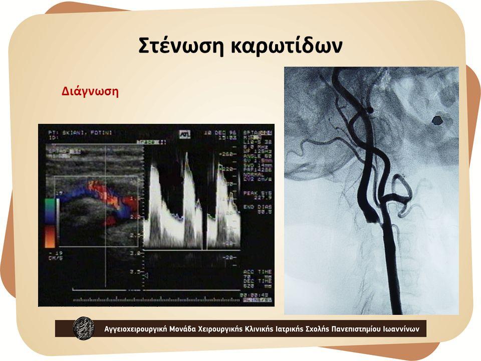Διάγνωση Στένωση καρωτίδων