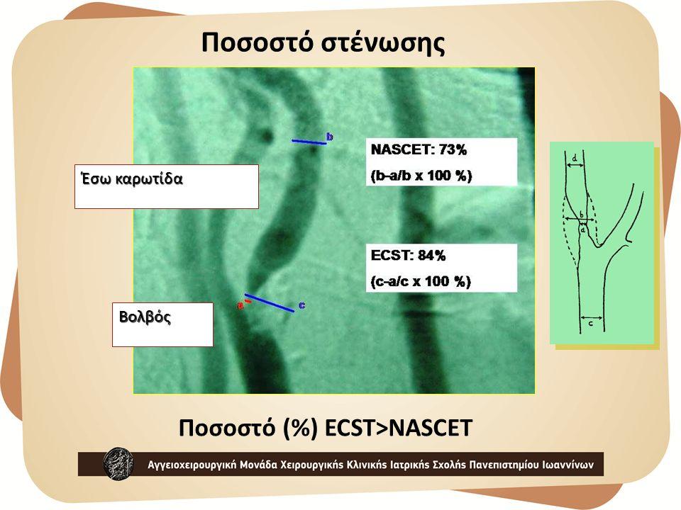 Έσω καρωτίδα Βολβός Ποσοστό (%) ECST>NASCET Ποσοστό στένωσης