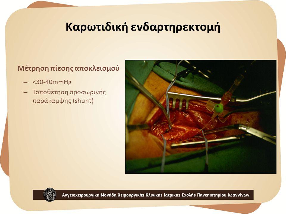 Καρωτιδική ενδαρτηρεκτομή Μέτρηση πίεσης αποκλεισμού – <30-40mmHg – Τοποθέτηση προσωρινής παράκαμψης (shunt)