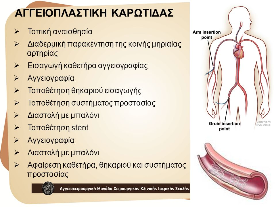  Τοπική αναισθησία  Διαδερμική παρακέντηση της κοινής μηριαίας αρτηρίας  Εισαγωγή καθετήρα αγγειογραφίας  Αγγειογραφία  Τοποθέτηση θηκαριού εισαγ
