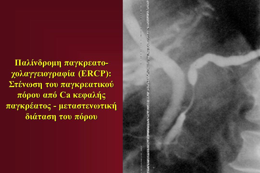 Παλίνδρομη παγκρεατο- χολαγγειογραφία (ERCP): Στένωση του παγκρεατικού πόρου από Ca κεφαλής παγκρέατος - μεταστενωτική διάταση του πόρου