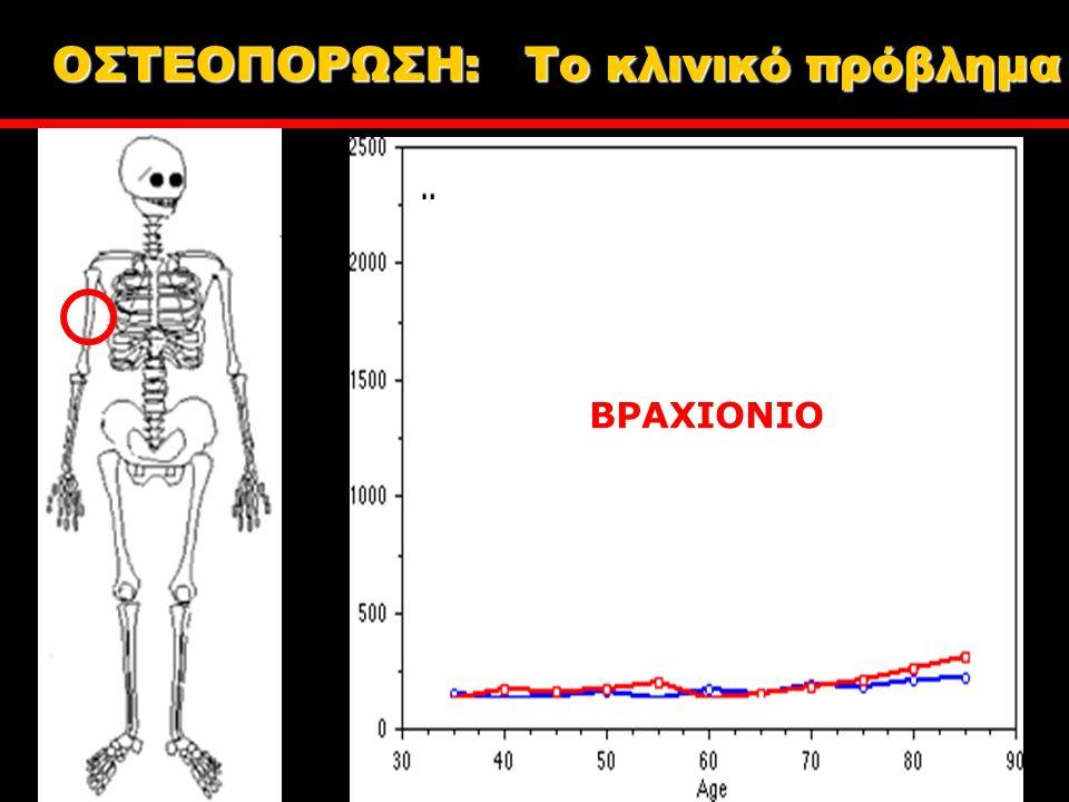 ΒΡΑΧΙΟΝΙΟ ΟΣΤΕΟΠΟΡΩΣΗ: Tο κλινικό πρόβλημα