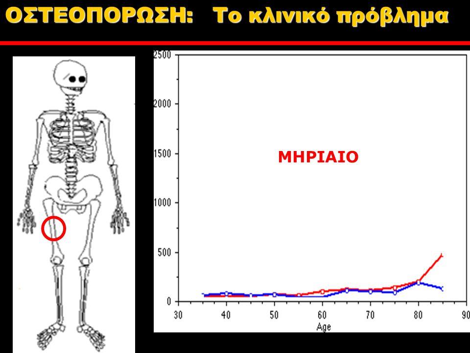 ΜΗΡΙΑΙΟ ΟΣΤΕΟΠΟΡΩΣΗ: Tο κλινικό πρόβλημα