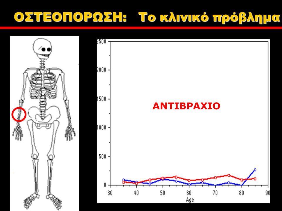 ΑΝΤΙΒΡΑΧΙΟ ΟΣΤΕΟΠΟΡΩΣΗ: Tο κλινικό πρόβλημα