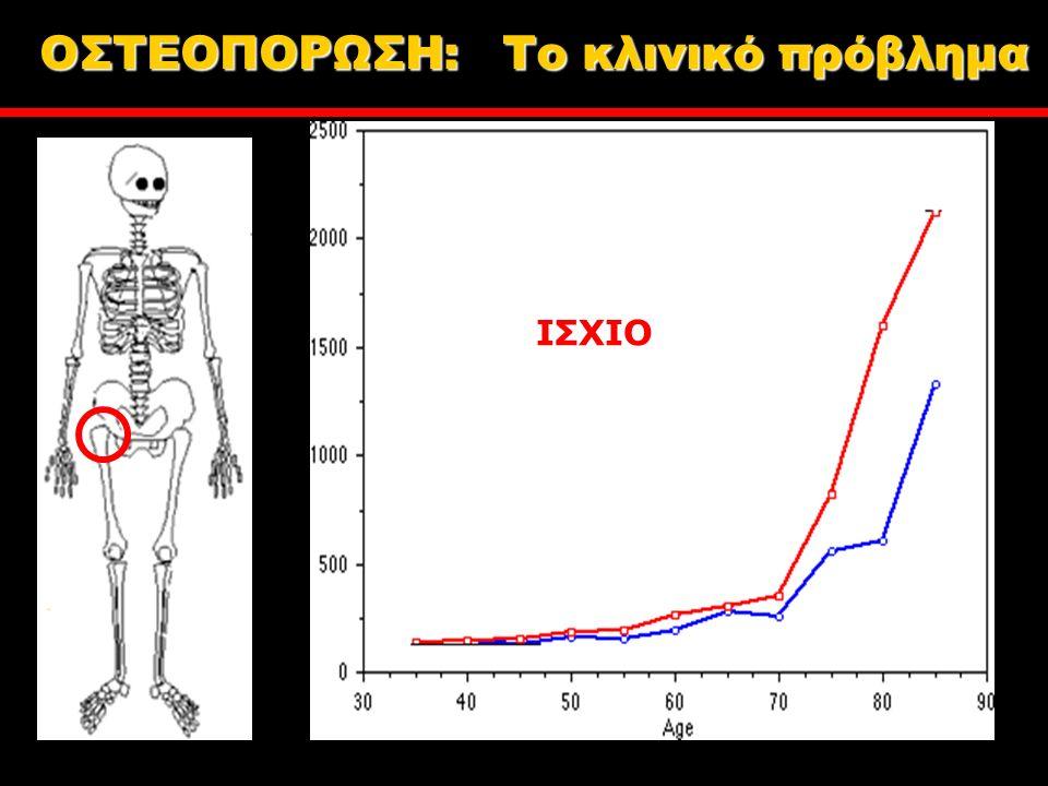 ΙΣΧΙΟ ΟΣΤΕΟΠΟΡΩΣΗ: Tο κλινικό πρόβλημα