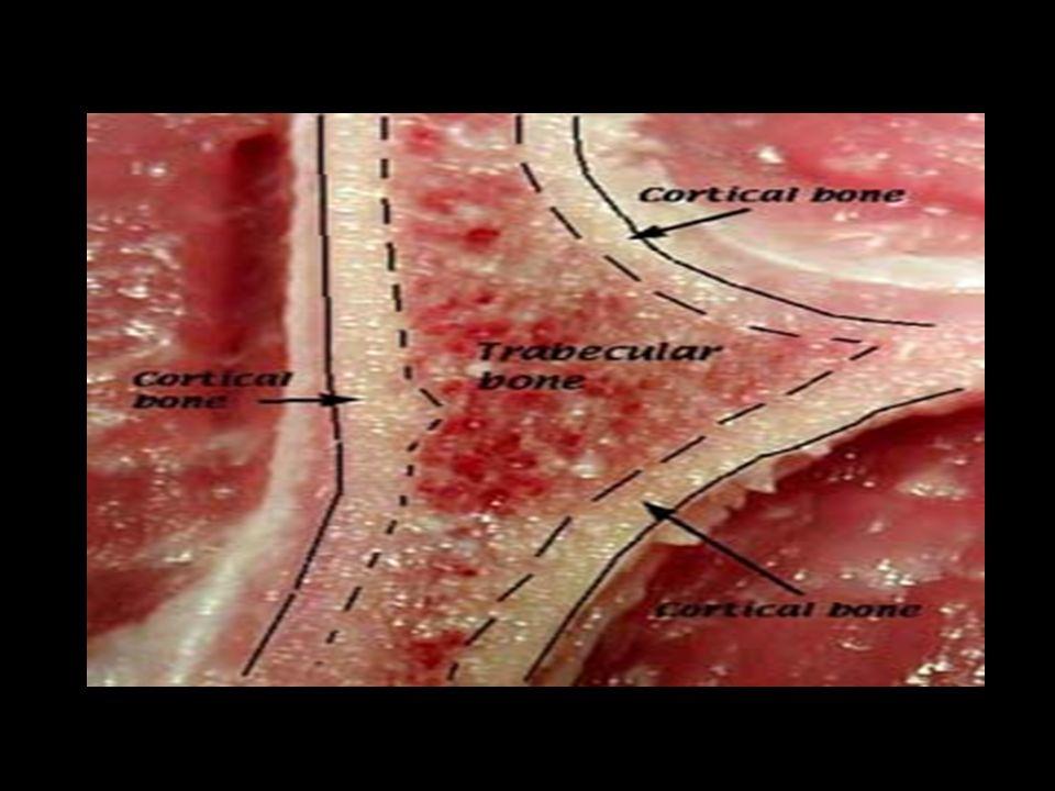 Γυναίκα ηλικίας 55 ετών, με αιφνίδιο άλγος στην Σπονδυλική Στήλη Ατομικό ιστορικό: Πρόωρη εμμηνόπαυση (43 ετών) Κληρονομικό ιστορικό: Ελεύθερο Φυσική εξέταση: Άλγος με την πλήξη στην περιοχή της Οσφυϊκής Μοίρας της Σπονδυλικής στήλης Διαφορική Διάγνωση: -Συμπιεστικό κάταγμα -Μυαλγία Παρακλινικός ¨Ελεγχος: Ακτινολογική εικόνα κατάγματος σπονδύλου Μέτρηση Οστικής Πυκνότητας: έκδηλη Οστεοπόρωση Διάγνωση: Συμπιεστικό Οστεοπορωτικό κάταγμα Σπονδυλικής Στήλης Θεραπεία: -Αναλγητικά -Διφωσφονικά