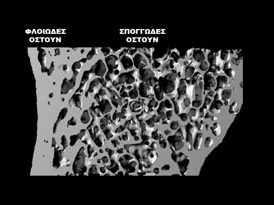 Melton 99Gunnes 98Black 99Ismail '01 ΔΙΑΓΝΩΣΗ ΤΗΣ ΟΣΤΕΟΠΟΡΩΣΗΣ ΔΙΑΓΝΩΣΗ ΤΗΣ ΟΣΤΕΟΠΟΡΩΣΗΣ Η ύπαρξη σπονδυλικών καταγμάτων αυξάνει τον κίνδυνο για κατάγματα ισχίου σε 3-4 χρόνια Melton et al.