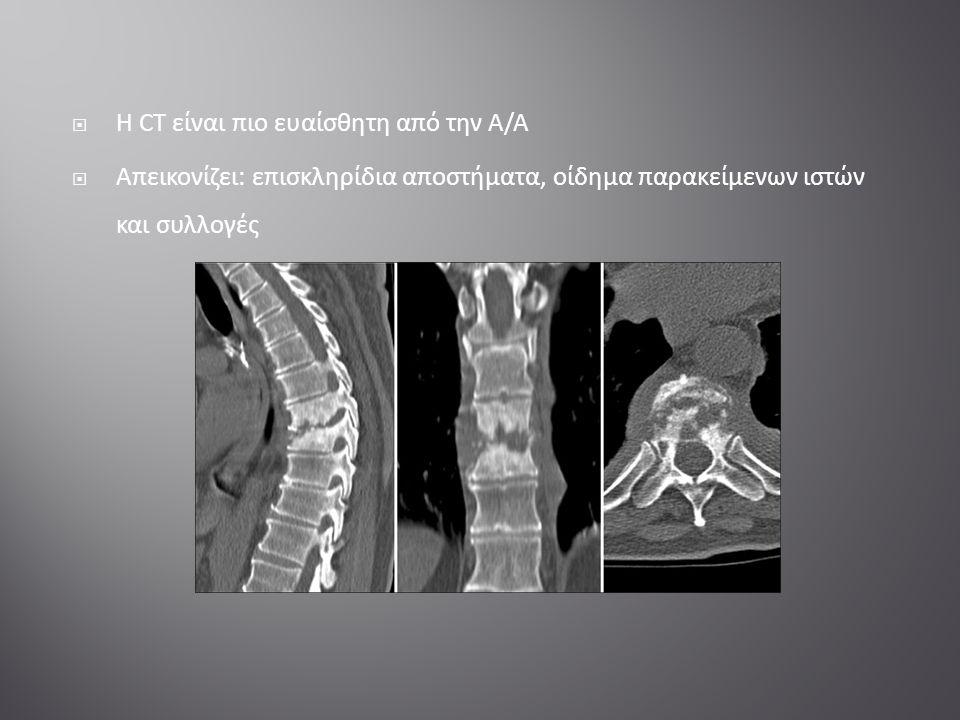  Η CT είναι πιο ευαίσθητη από την Α/Α  Απεικονίζει: επισκληρίδια αποστήματα, οίδημα παρακείμενων ιστών και συλλογές