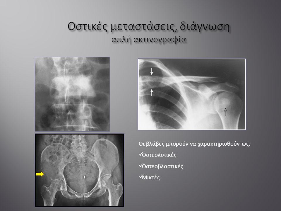 Οι βλάβες μπορούν να χαρακτηρισθούν ως: Οστεολυτικές Οστεοβλαστικές Μικτές