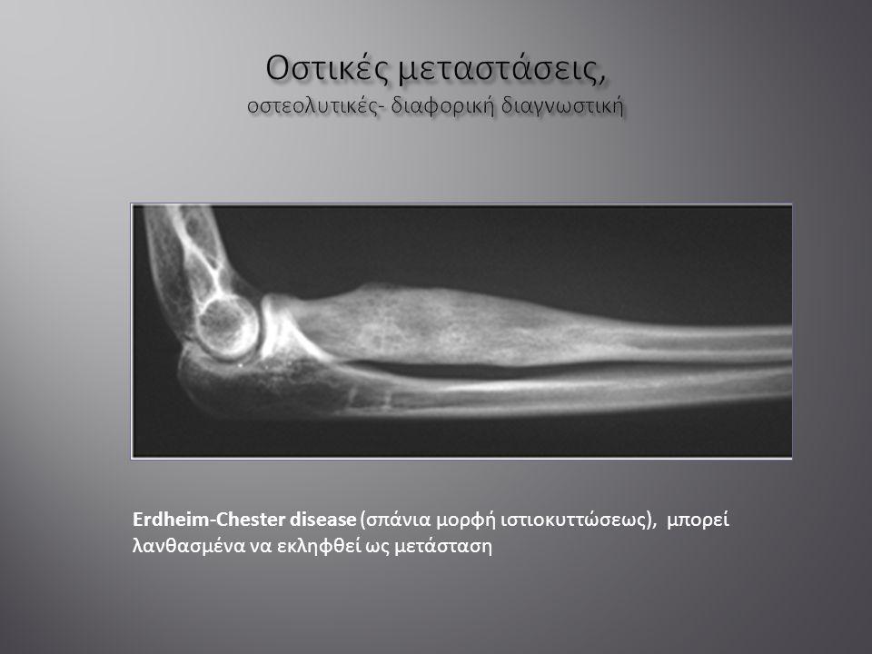 Erdheim-Chester disease (σπάνια μορφή ιστιοκυττώσεως), μπορεί λανθασμένα να εκληφθεί ως μετάσταση