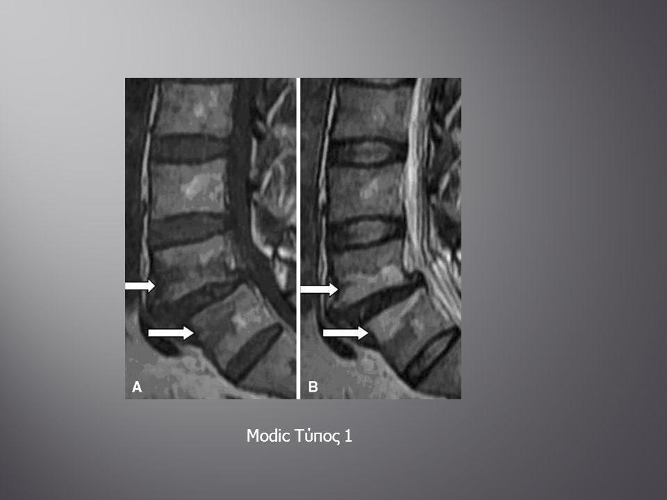  Πάχυνση-σκλήρυνση του οστού  Διαταραχή της αρχιτεκτονικής  Ασάφεια μεταξύ φλοιού και αυλού του οστού  Απόλυμμα περιβαλλόμενο από οστική καταστροφή  Απόστημα Brondie CT: δείχνει το απόλυμμα και γενικά τον οστίτη ιστό  MRI: Μέθοδος εκλογής (έκταση φλεγμονής)