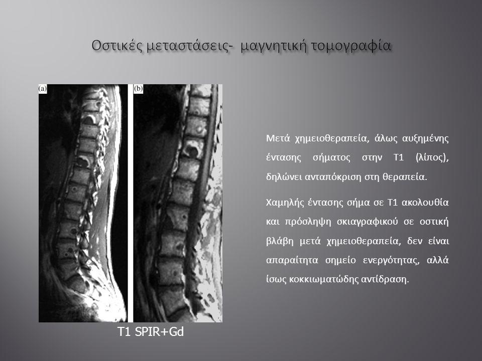 Μετά χημειοθεραπεία, άλως αυξημένης έντασης σήματος στην Τ1 (λίπος), δηλώνει ανταπόκριση στη θεραπεία.