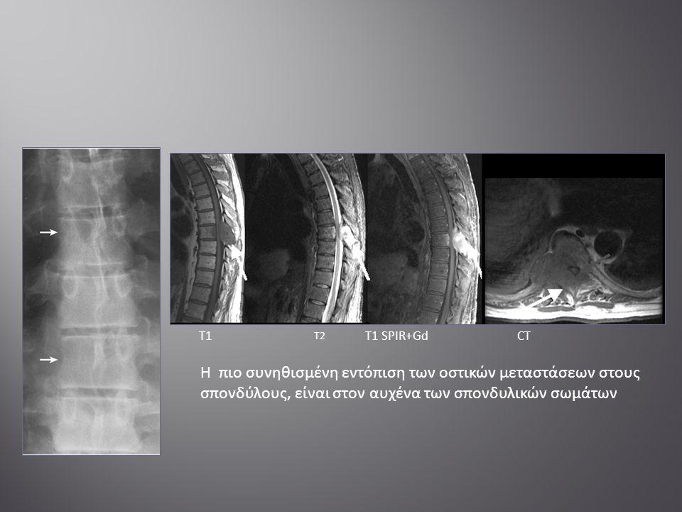 Η πιο συνηθισμένη εντόπιση των οστικών μεταστάσεων στους σπονδύλους, είναι στον αυχένα των σπονδυλικών σωμάτων T1 T2 Τ1 SPIR+GdCT