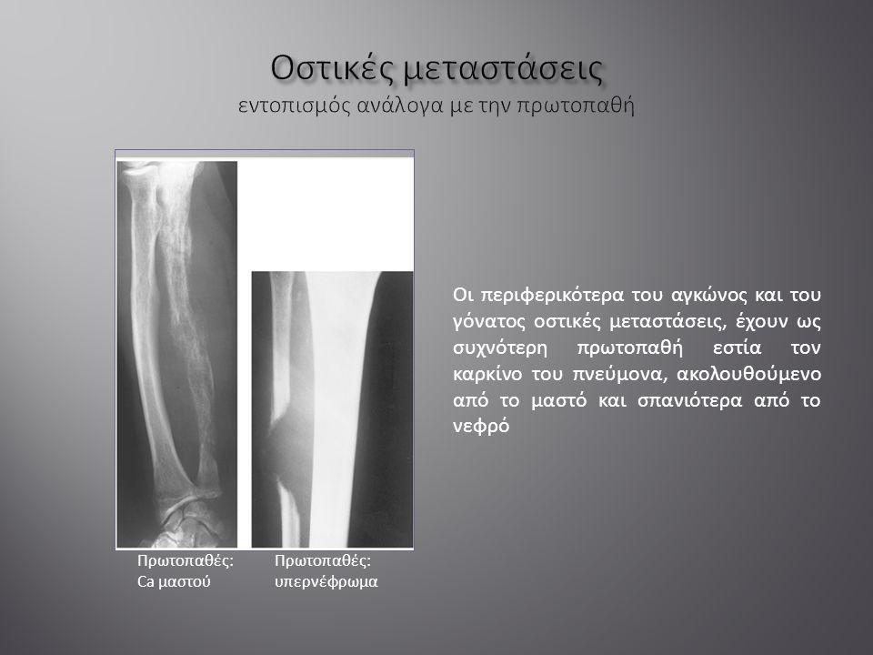 Οι περιφερικότερα του αγκώνος και του γόνατος οστικές μεταστάσεις, έχουν ως συχνότερη πρωτοπαθή εστία τον καρκίνο του πνεύμονα, ακολουθούμενο από το μαστό και σπανιότερα από το νεφρό Πρωτοπαθές: Ca μαστού Πρωτοπαθές: υπερνέφρωμα