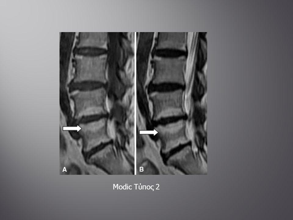  Συχνήκαλοήθης οστική βλάβη  A/A: χόνδρος που καλύπτει οστική προεξοχή (εξόστωση)  Έμμισχος τύπος : λεπτός μίσχος με κατεύθυνση μακριά από την άρθρωση  Άμισχος τύπος : ευρείας βάσεως πρόσφυση στον φλοιό