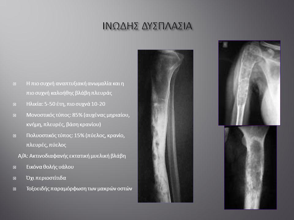  Η πιο συχνή αναπτυξιακή ανωμαλία και η πιο συχνή καλοήθης βλάβη πλευράς  Ηλικία: 5-50 έτη, πιο συχνά 10-20  Μονοστικός τύπος: 85% (αυχένας μηριαίου, κνήμη, πλευρές, βάση κρανίου)  Πολυοστικός τύπος: 15% (πύελος, κρανίο, πλευρές, πύελος Α/Α: Ακτινοδιαφανής εκτατική μυελική βλάβη  Εικόνα θολής υάλου  Όχι περιοστίτιδα  Τοξοειδής παραμόρφωση των μακρών οστών