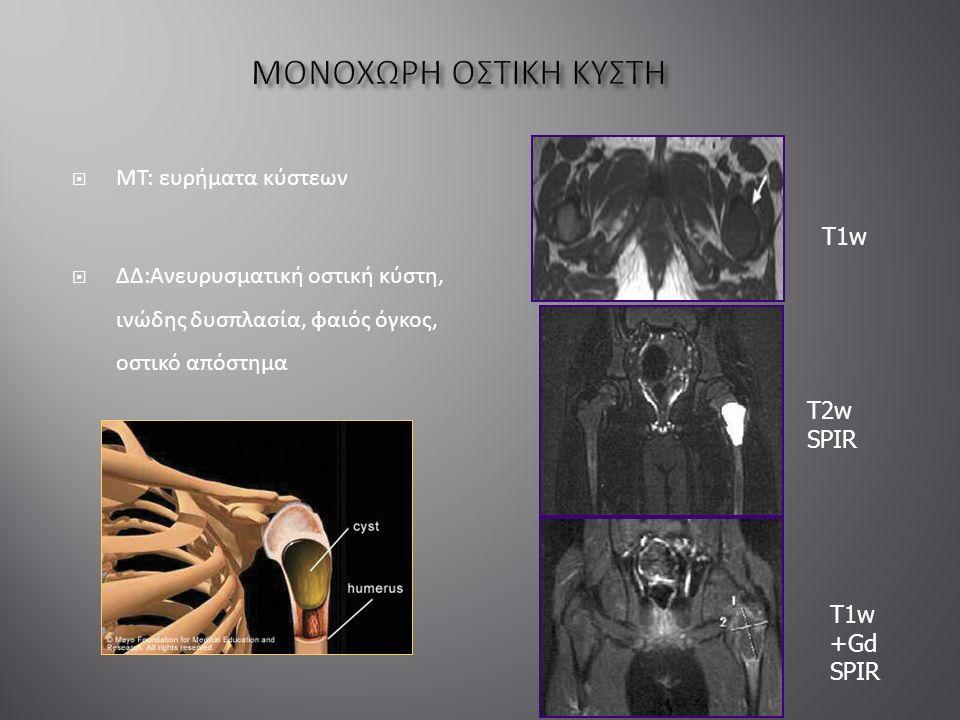  ΜΤ: ευρήματα κύστεων  ΔΔ:Ανευρυσματική οστική κύστη, ινώδης δυσπλασία, φαιός όγκος, οστικό απόστημα T1w T2w SPIR T1w +Gd SPIR