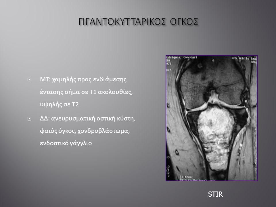  ΜΤ: χαμηλής προς ενδιάμεσης έντασης σήμα σε Τ1 ακολουθίες, υψηλής σε Τ2  ΔΔ: ανευρυσματική οστική κύστη, φαιός όγκος, χονδροβλάστωμα, ενδοστικό γάγγλιο STIR