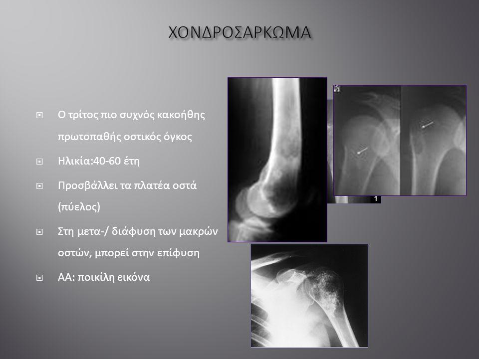  Ο τρίτος πιο συχνός κακοήθης πρωτοπαθής οστικός όγκος  Ηλικία:40-60 έτη  Προσβάλλει τα πλατέα οστά (πύελος)  Στη μετα-/ διάφυση των μακρών οστών, μπορεί στην επίφυση  ΑΑ: ποικίλη εικόνα