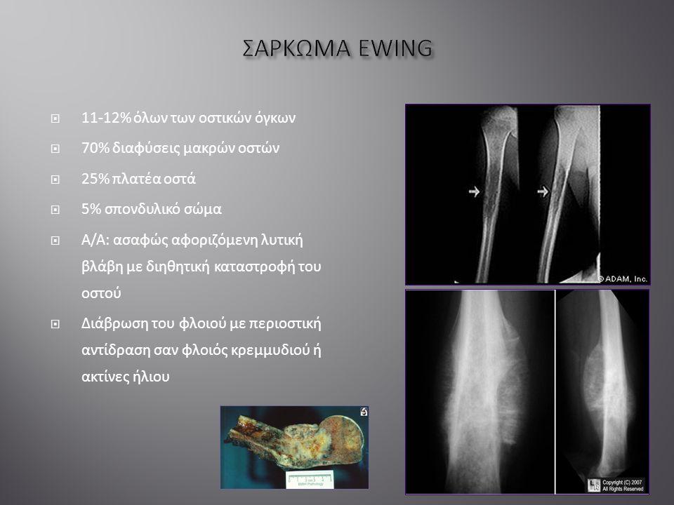  11-12% όλων των οστικών όγκων  70% διαφύσεις μακρών οστών  25% πλατέα οστά  5% σπονδυλικό σώμα  Α/Α: ασαφώς αφοριζόμενη λυτική βλάβη με διηθητική καταστροφή του οστού  Διάβρωση του φλοιού με περιοστική αντίδραση σαν φλοιός κρεμμυδιού ή ακτίνες ήλιου