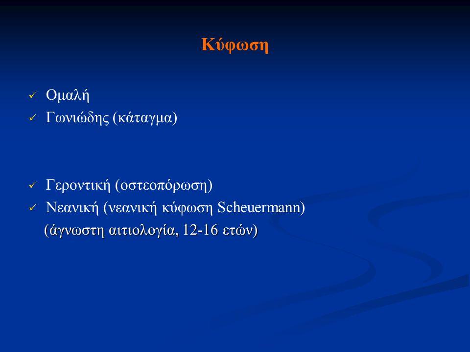 Κύφωση Ομαλή Γωνιώδης (κάταγμα) Γεροντική (οστεοπόρωση) Νεανική (νεανική κύφωση Scheuermann) (άγνωστη αιτιολογία, 12-16 ετών) (άγνωστη αιτιολογία, 12-