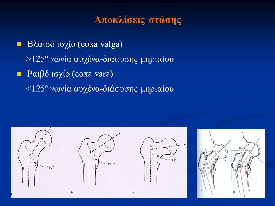 Αποκλίσεις στάσης Βλαισό ισχίο (coxa valga) >125º γωνία αυχένα-διάφυσης μηριαίου Ραιβό ισχίο (coxa vara) <125º γωνία αυχένα-διάφυσης μηριαίου