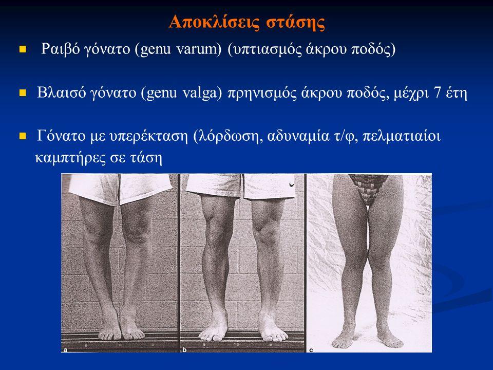 Αποκλίσεις στάσης Ραιβό γόνατο (genu varum) (υπτιασμός άκρου ποδός) Βλαισό γόνατο (genu valga) πρηνισμός άκρου ποδός, μέχρι 7 έτη Γόνατο με υπερέκταση