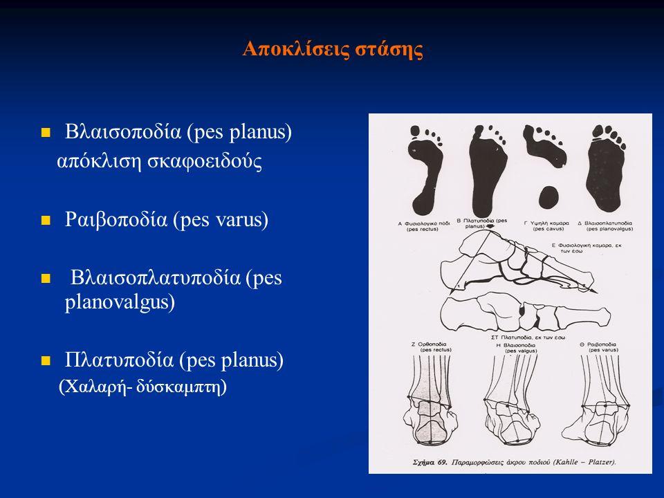 Αποκλίσεις στάσης Βλαισοποδία (pes planus) απόκλιση σκαφοειδούς Ραιβοποδία (pes varus) Βλαισοπλατυποδία (pes planovalgus) Πλατυποδία (pes planus) (Χαλ