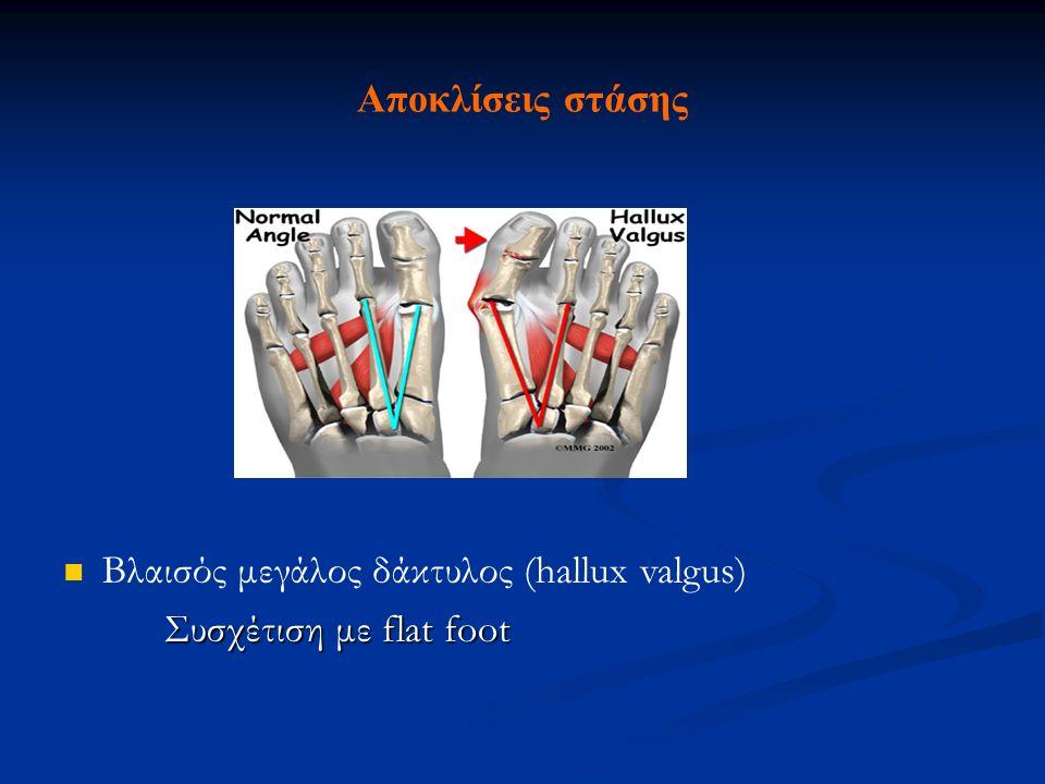 Αποκλίσεις στάσης Βλαισός μεγάλος δάκτυλος (hallux valgus) Συσχέτιση με flat foot