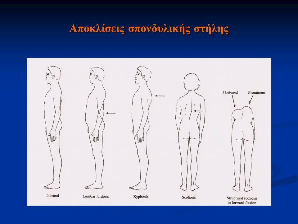 Σκολιώσεις Δομικές-Οργανικές Ιδιοπαθείς Νευρομυϊκές (πολιομυελίτιδα) Συγγενείς (ημισπόνδυλος, συνοστέωση σπονδύλων) Άλλες αιτίες (νευροϊνωμάτωση, όγκοι) Μή δομικές- Λειτουργικές  Αντισταθμιστικές (ανισοσκελία)  Ανταλγικές  Στατικές (κακή στάση)