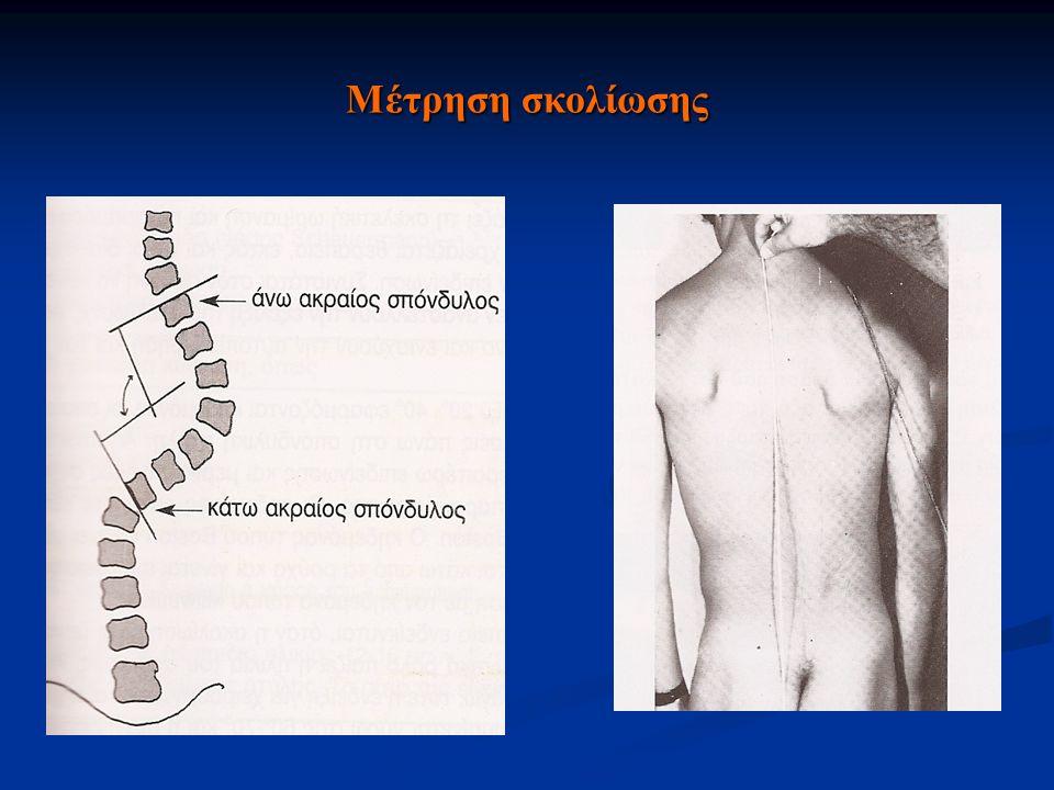 ΧΑΡΑΚΤΗΡΙΣΤΙΚΑ Σε μεγάλου βαθμού σκολιώσεις Σε μεγάλου βαθμού σκολιώσεις Πόνοι στην ΣΣ Πόνοι στην ΣΣ Διαταραχές καθιστής θέσης Διαταραχές καθιστής θέσης Αναπνευστικά προβλήματα (αναπνευστικές λοιμώξεις και ανεπάρκεια) Αναπνευστικά προβλήματα (αναπνευστικές λοιμώξεις και ανεπάρκεια) Διαταραχές στο ισχίο Διαταραχές στο ισχίο