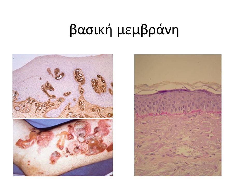 βασική μεμβράνη