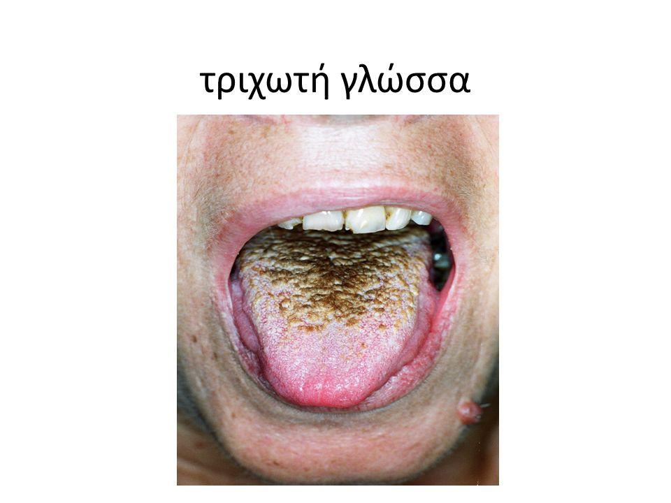 τριχωτή γλώσσα