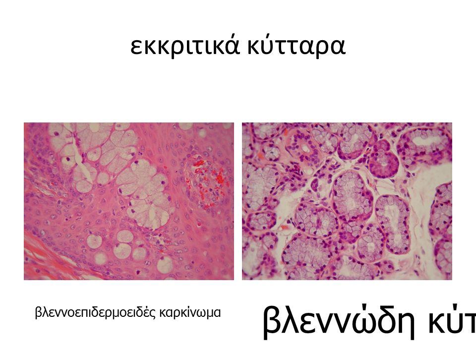 εκκριτικά κύτταρα βλεννοεπιδερμοειδές καρκίνωμα βλεννώδη κύτταρα